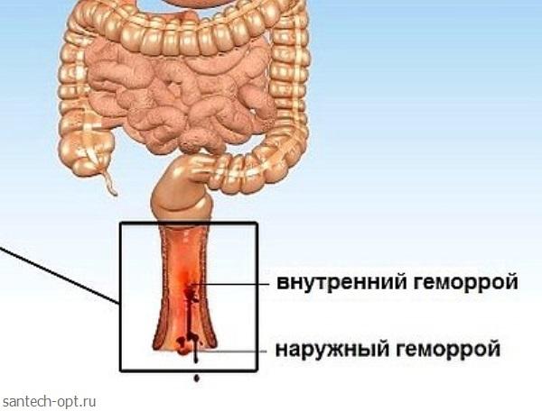 Геморрой симптомы народные средства фото 83