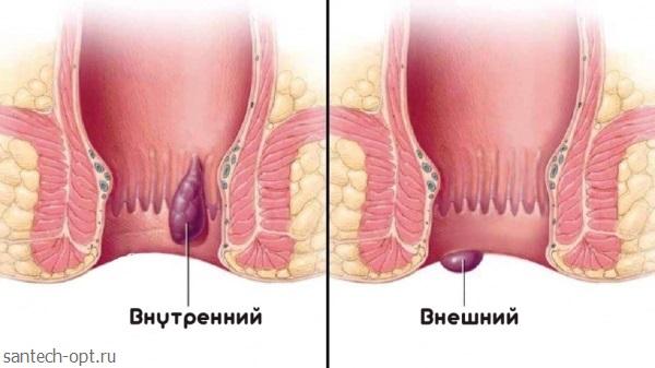 Геморрой у женщин как выглядит фото 23