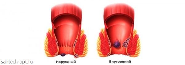 Красноярск операция по геморрою платно фото 100